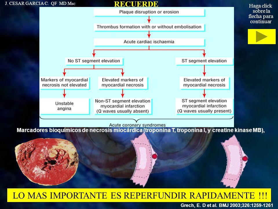 LO MAS IMPORTANTE ES REPERFUNDIR RAPIDAMENTE !!!