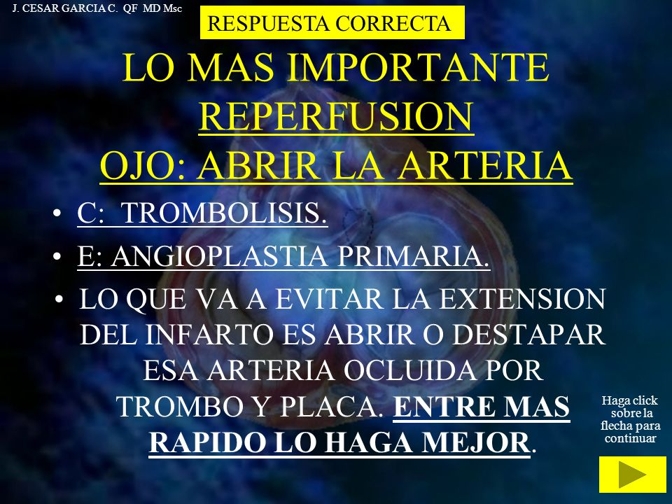 LO MAS IMPORTANTE REPERFUSION OJO: ABRIR LA ARTERIA