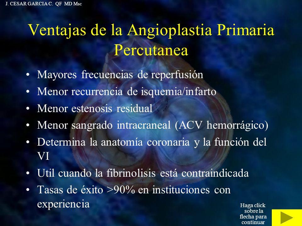 Ventajas de la Angioplastia Primaria Percutanea