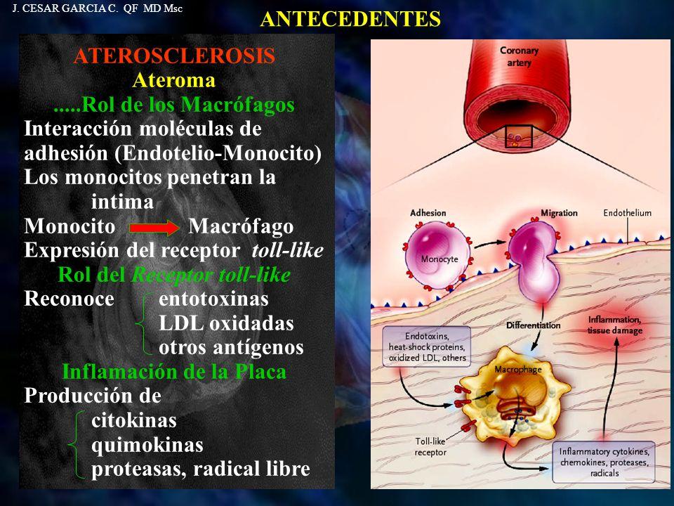 Rol del Receptor toll-like Inflamación de la Placa