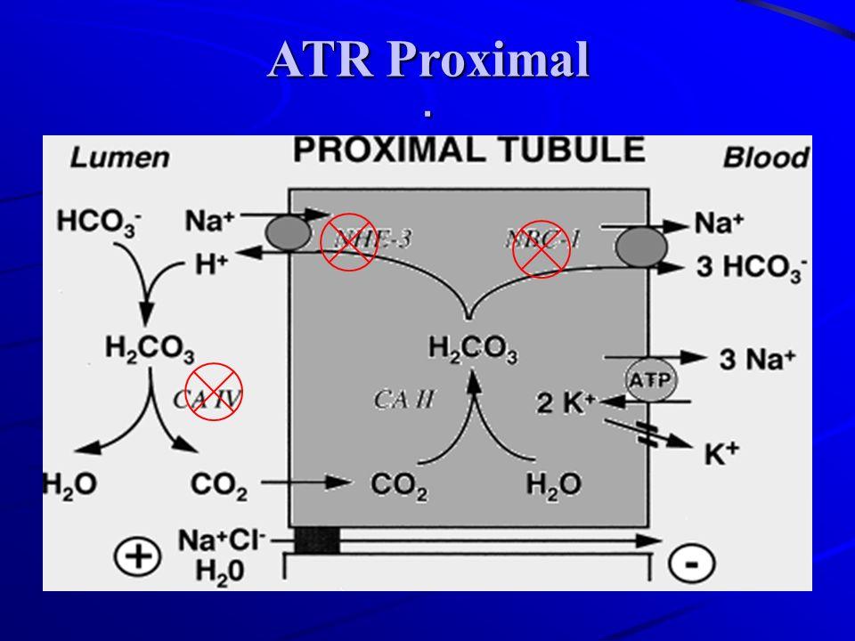 ATR Proximal .