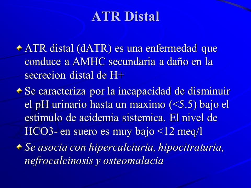 ATR Distal ATR distal (dATR) es una enfermedad que conduce a AMHC secundaria a daño en la secrecion distal de H+