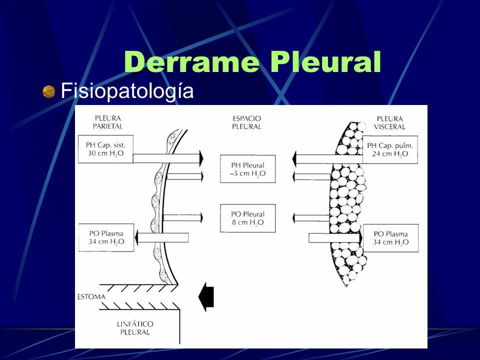 Derrame Pleural Fisiopatología