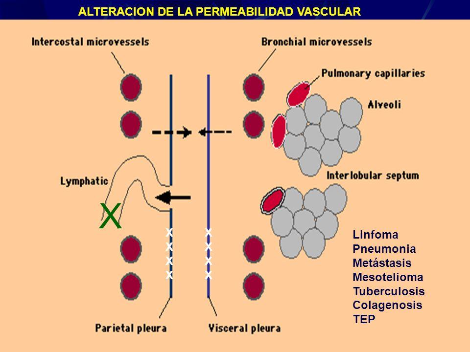 X ALTERACION DE LA PERMEABILIDAD VASCULAR X X Linfoma Pneumonia