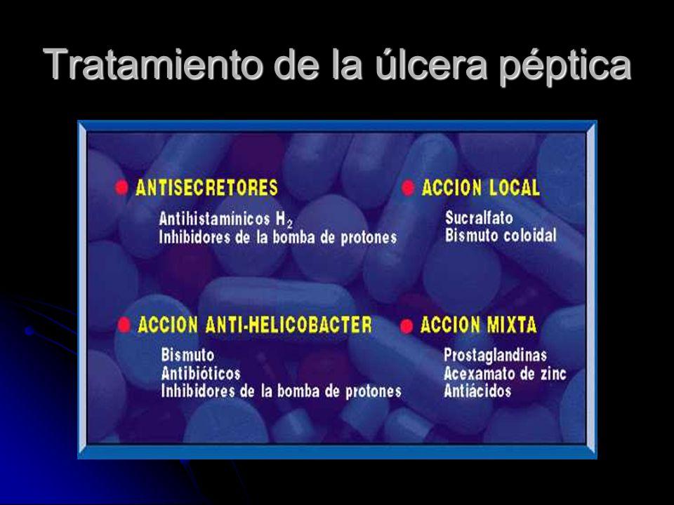 Tratamiento de la úlcera péptica
