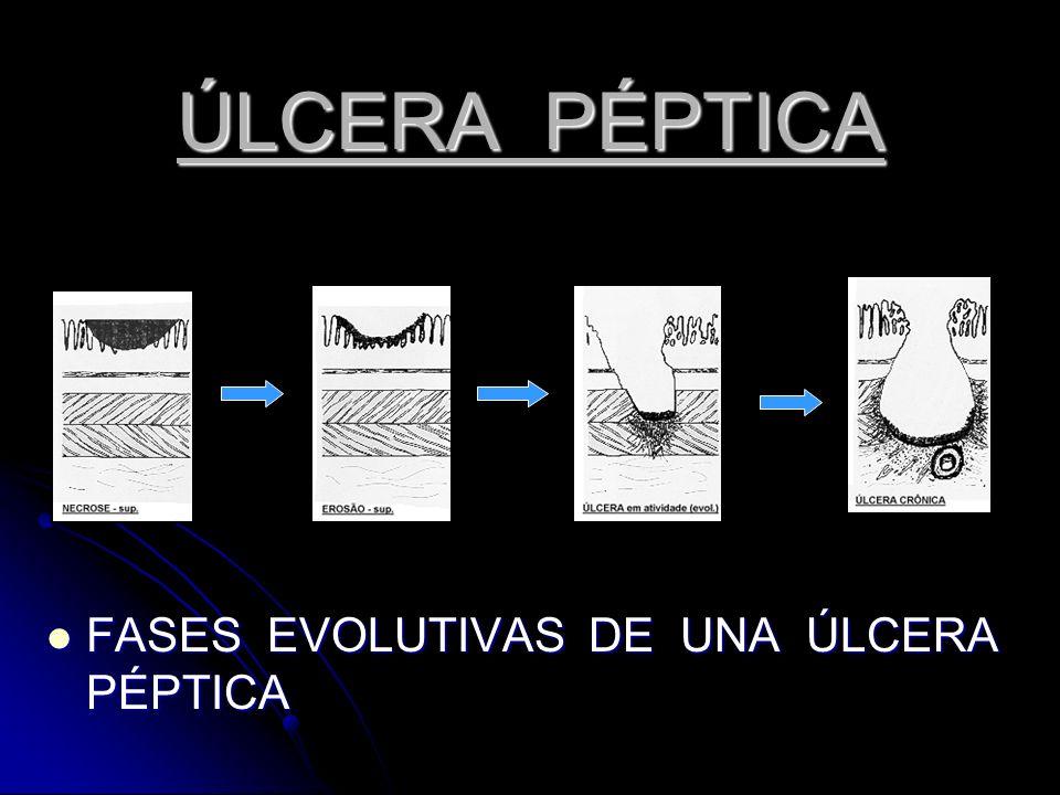 ÚLCERA PÉPTICA FASES EVOLUTIVAS DE UNA ÚLCERA PÉPTICA