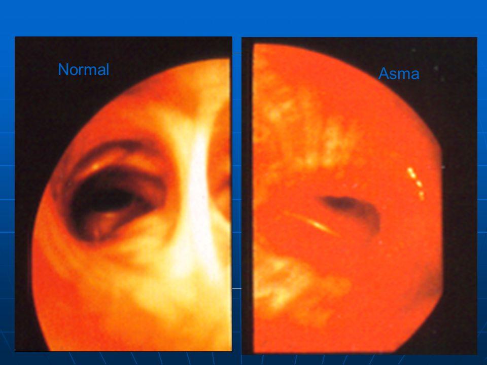 Normal Asma