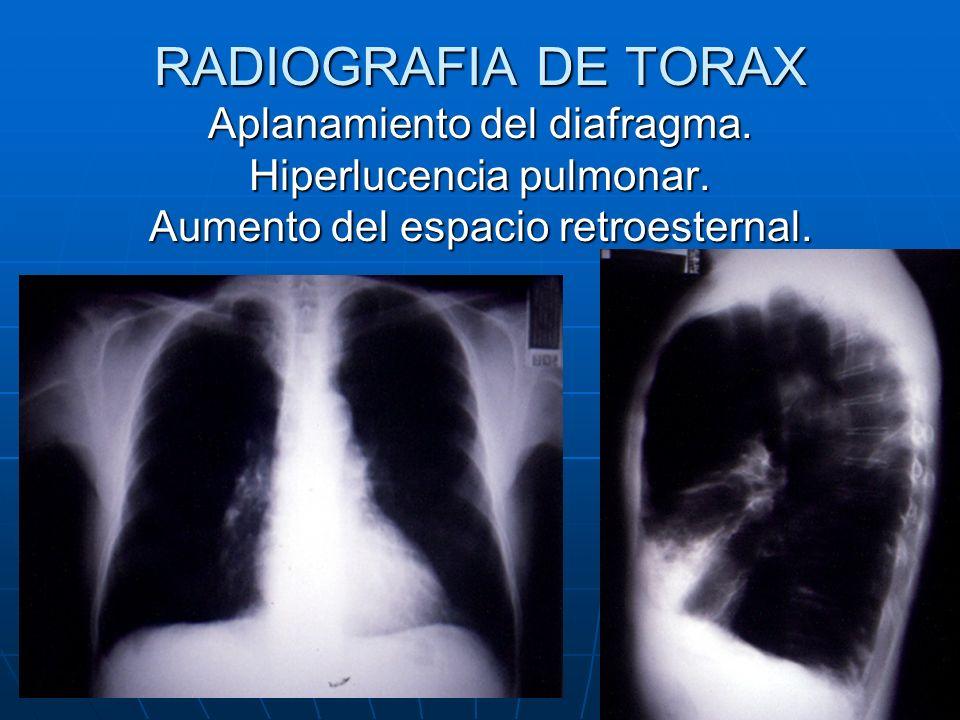 RADIOGRAFIA DE TORAX Aplanamiento del diafragma. Hiperlucencia pulmonar.