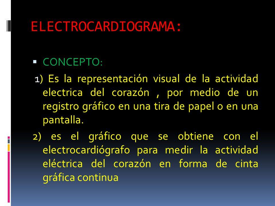 ELECTROCARDIOGRAMA: CONCEPTO: