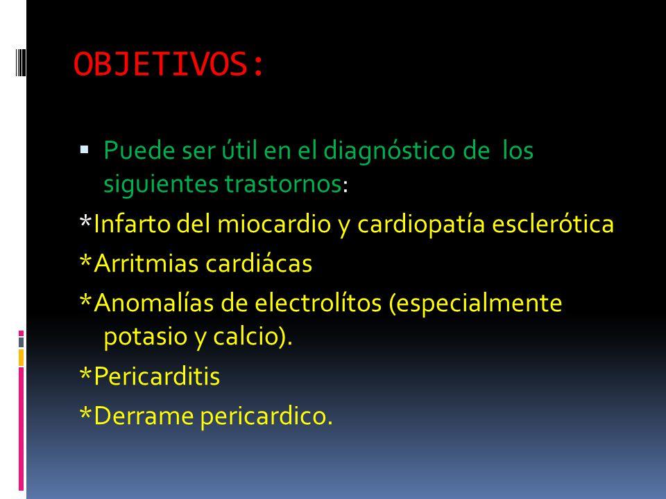 OBJETIVOS: Puede ser útil en el diagnóstico de los siguientes trastornos: *Infarto del miocardio y cardiopatía esclerótica.