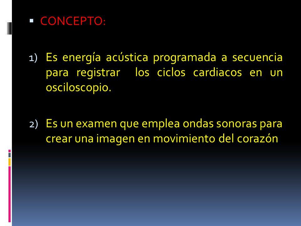 CONCEPTO: Es energía acústica programada a secuencia para registrar los ciclos cardiacos en un osciloscopio.