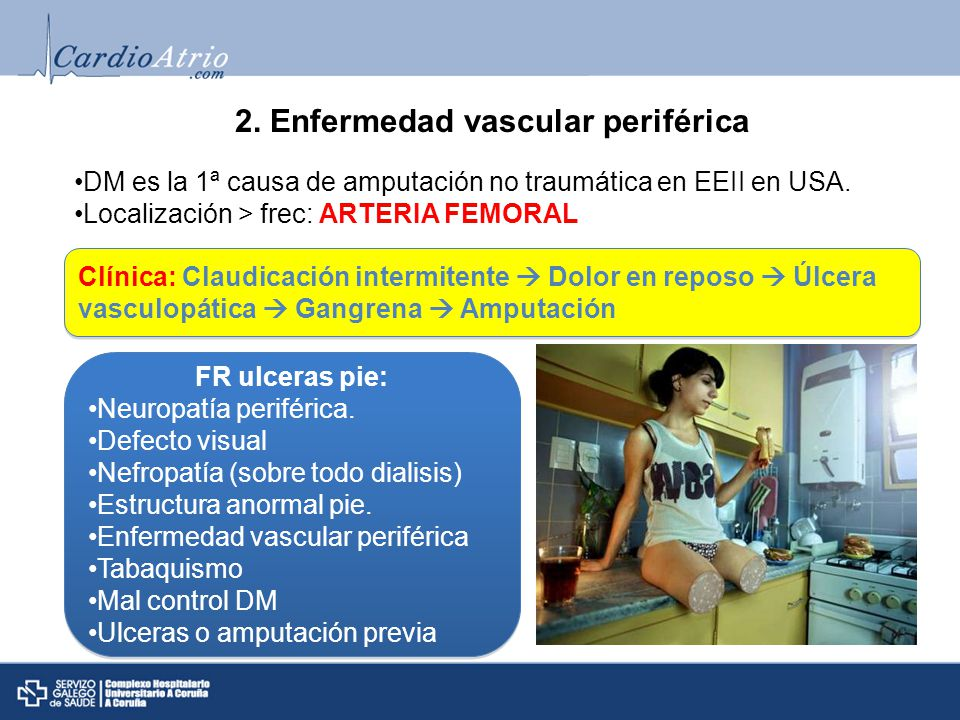 2. Enfermedad vascular periférica