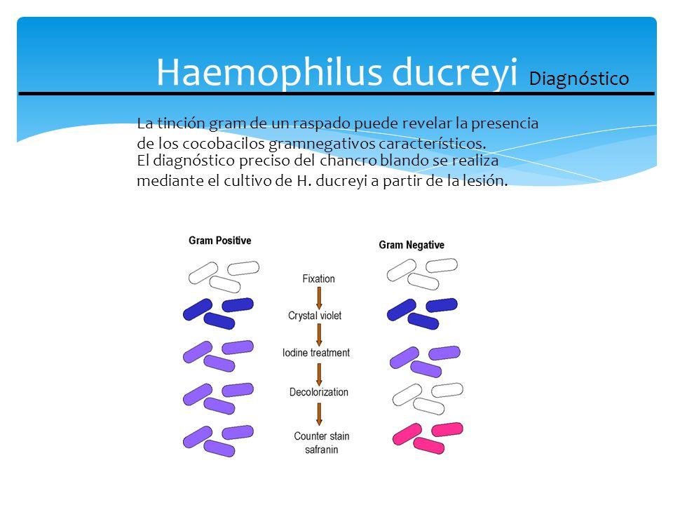 Haemophilus ducreyi Diagnóstico