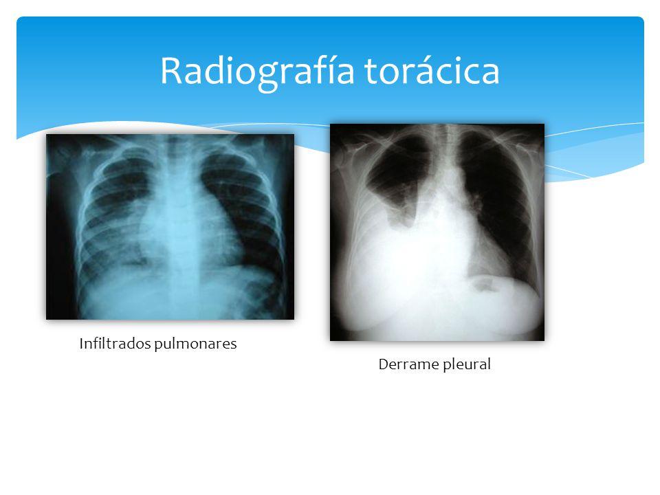 Radiografía torácica Infiltrados pulmonares Derrame pleural