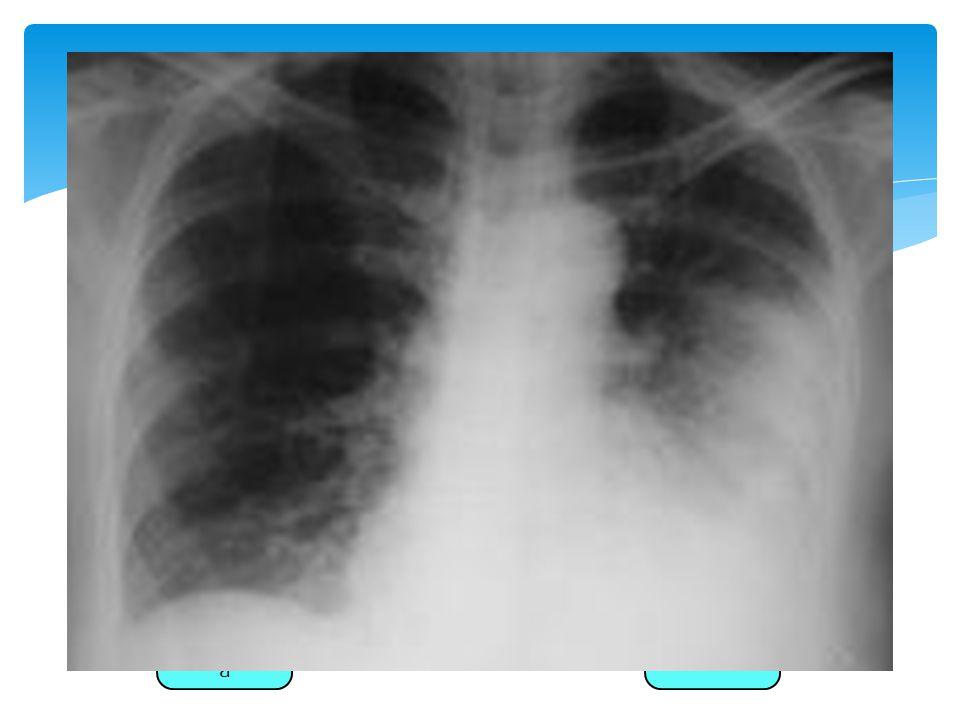 MC: No tipificables. Radiografía Tos productiva Fiebre