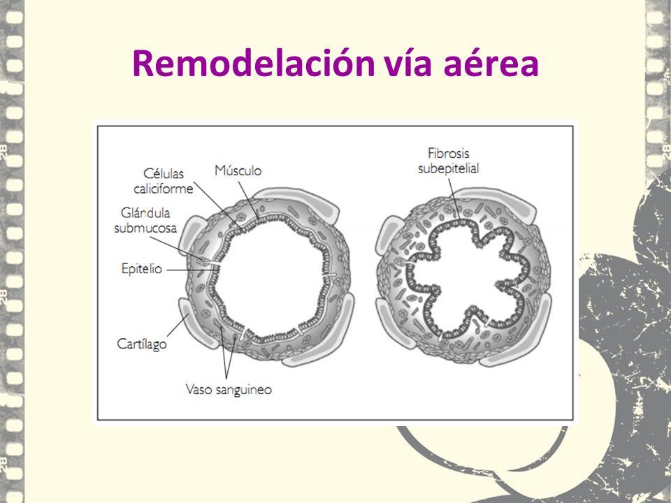 Remodelación vía aérea