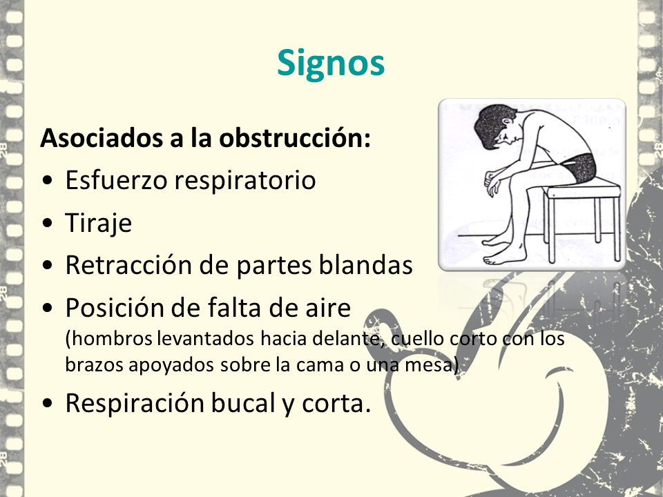 Signos Asociados a la obstrucción: Esfuerzo respiratorio Tiraje