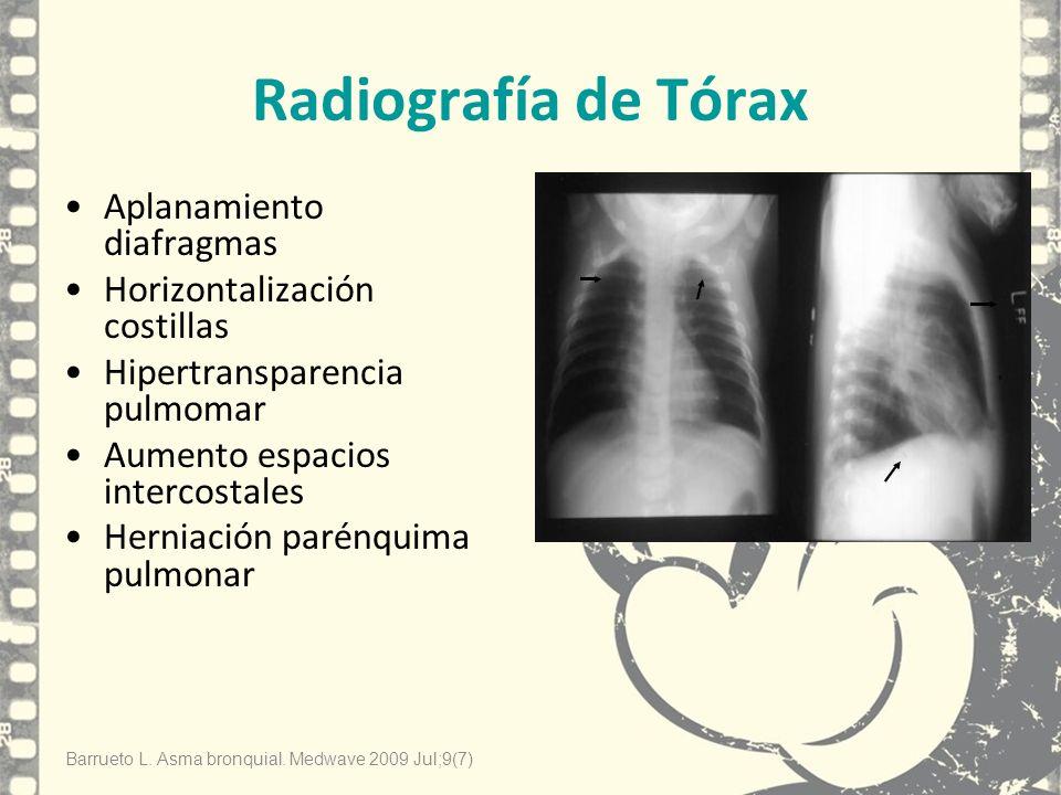 Radiografía de Tórax Aplanamiento diafragmas