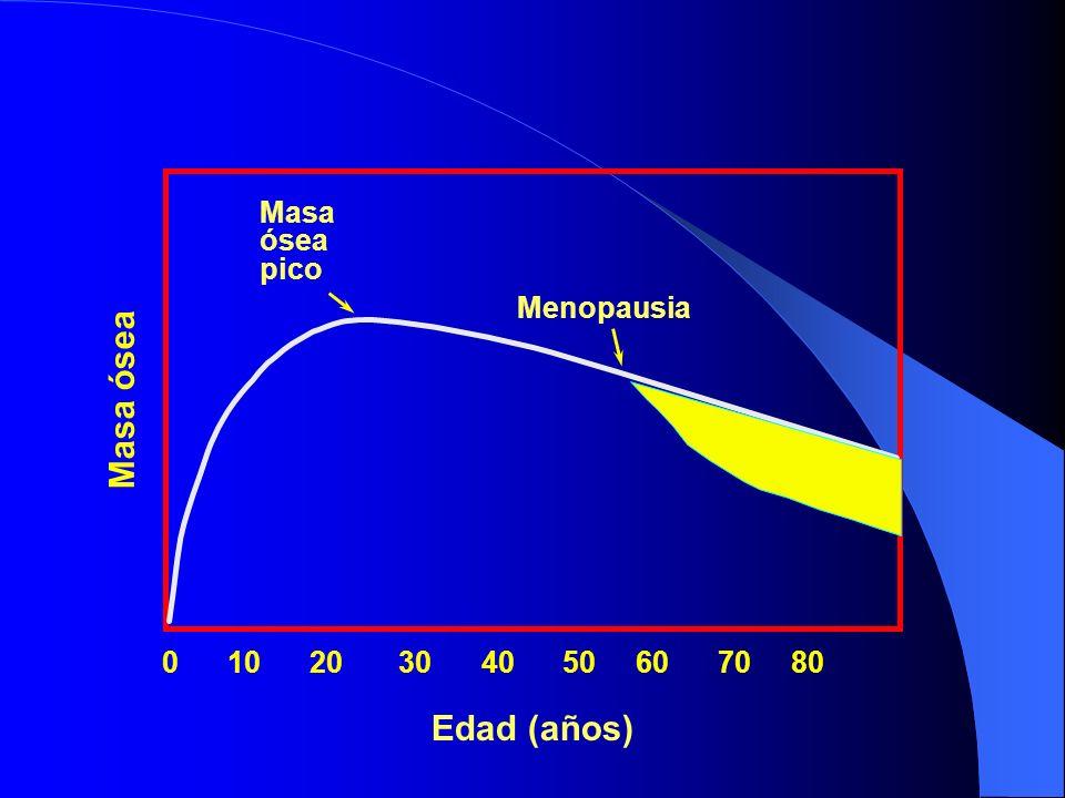 Masa ósea Edad (años) Masa ósea pico Menopausia