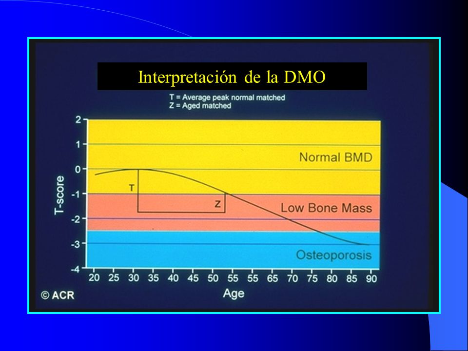 Interpretación de la DMO