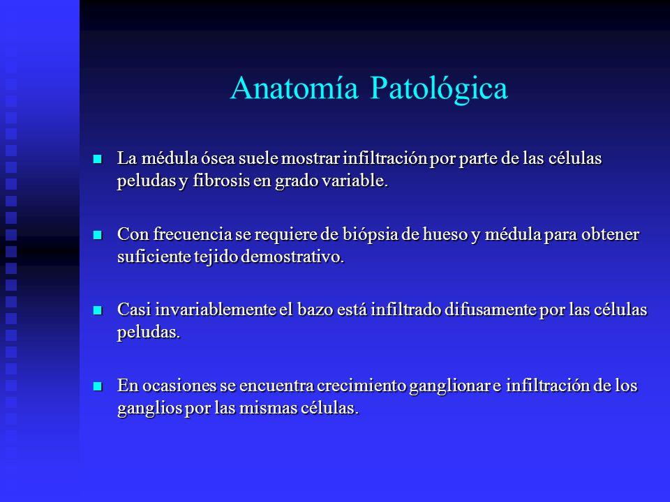 Anatomía Patológica La médula ósea suele mostrar infiltración por parte de las células peludas y fibrosis en grado variable.
