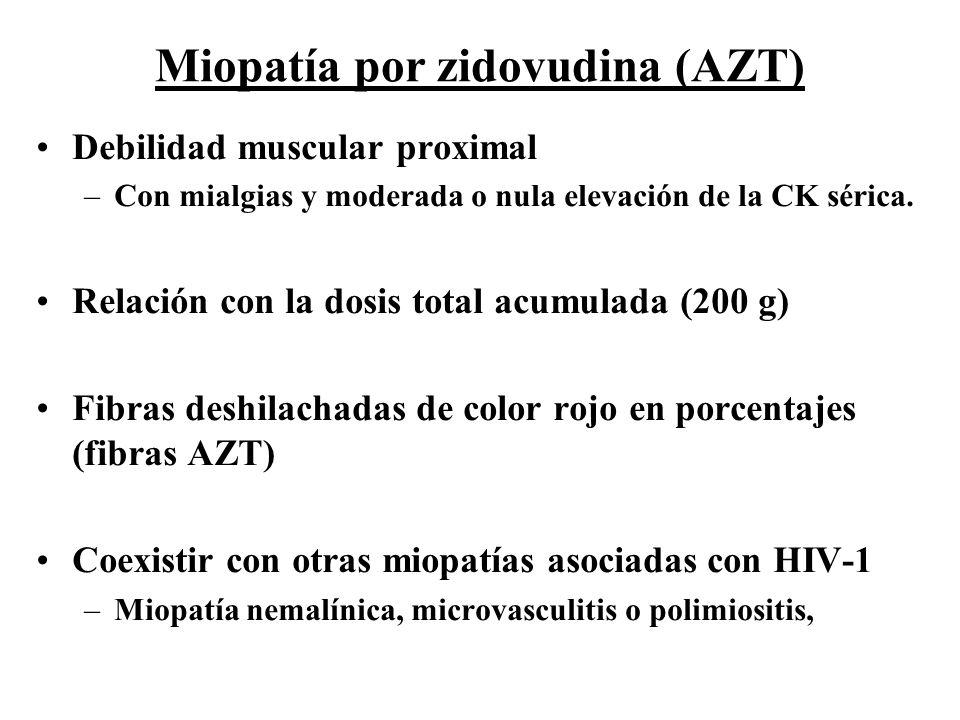 Miopatía por zidovudina (AZT)