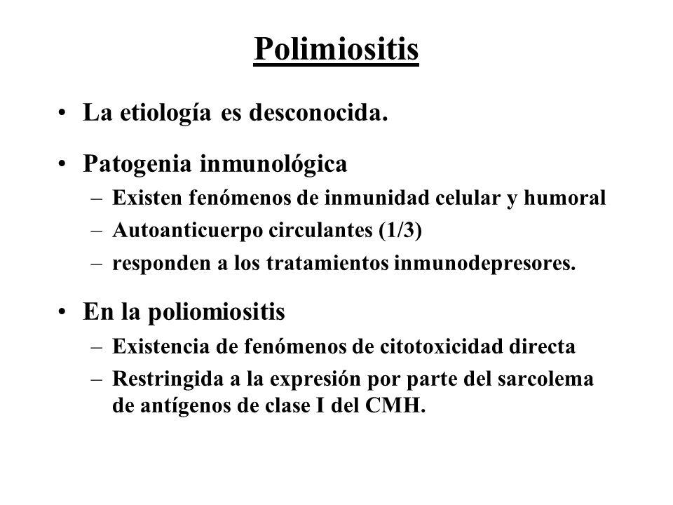 Polimiositis La etiología es desconocida. Patogenia inmunológica