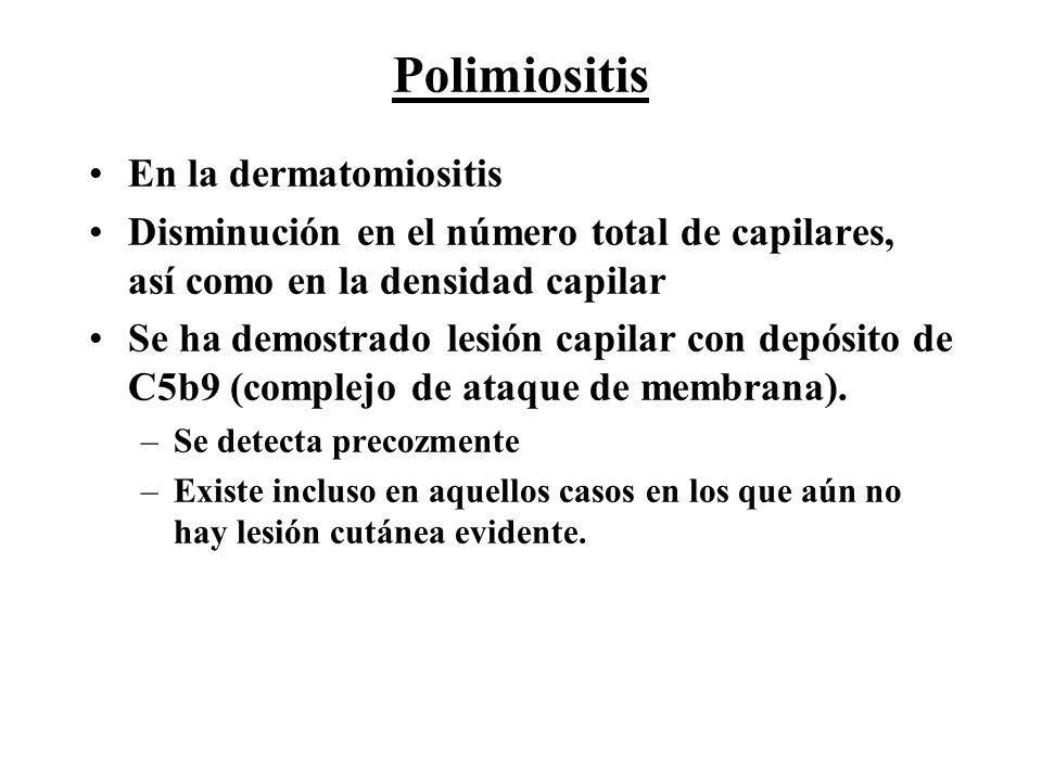 Polimiositis En la dermatomiositis