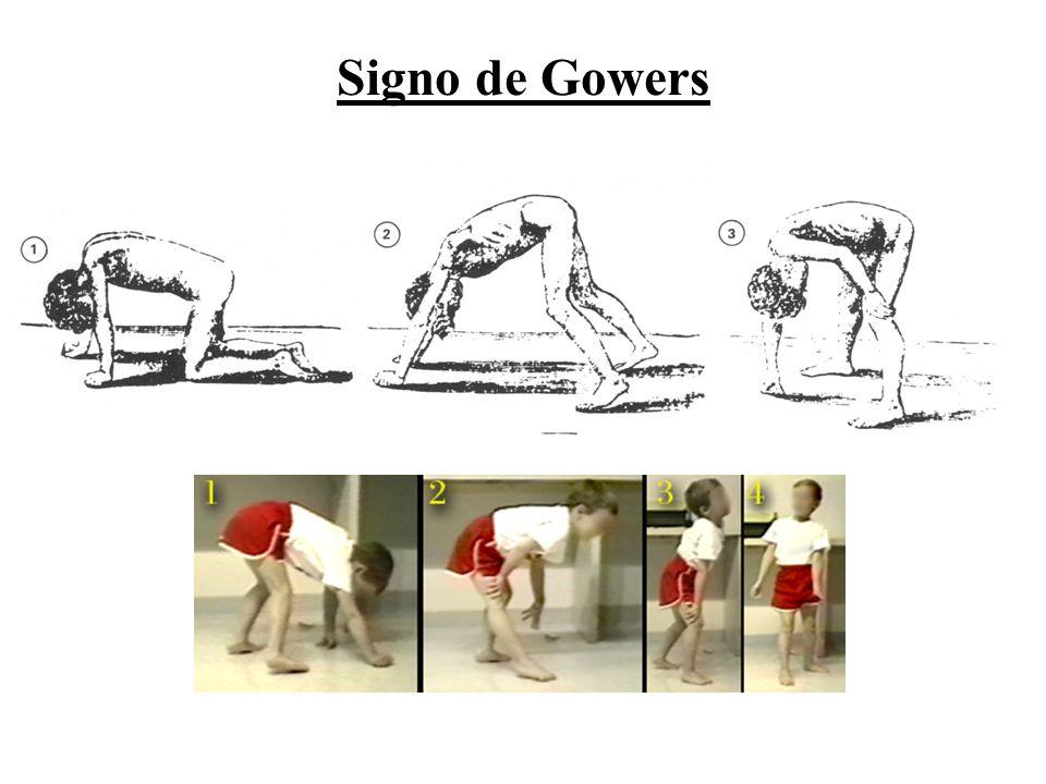 Signo de Gowers