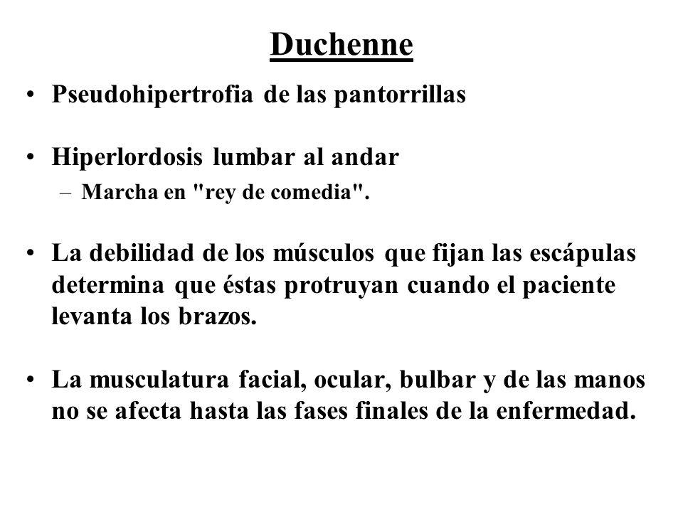 Duchenne Pseudohipertrofia de las pantorrillas
