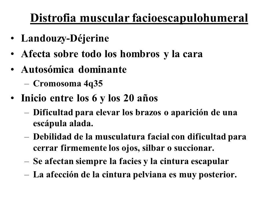 Distrofia muscular facioescapulohumeral