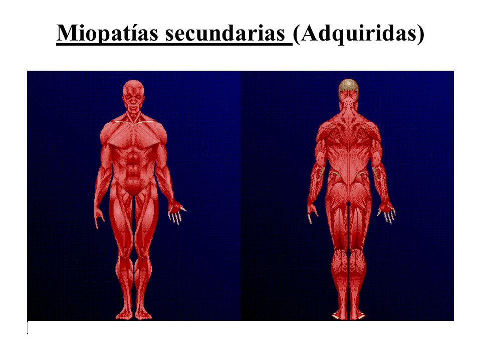 Miopatías secundarias (Adquiridas)