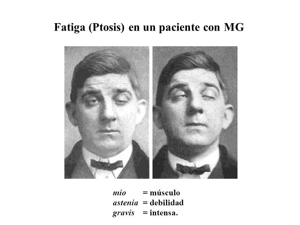 Fatiga (Ptosis) en un paciente con MG