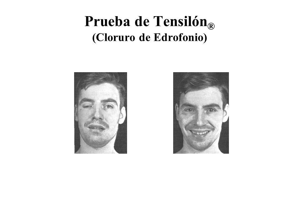 Prueba de Tensilón® (Cloruro de Edrofonio)