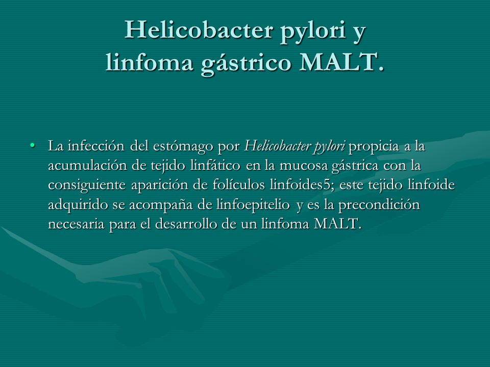Helicobacter pylori y linfoma gástrico MALT.