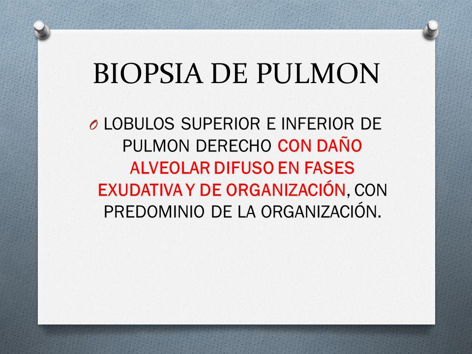 BIOPSIA DE PULMON