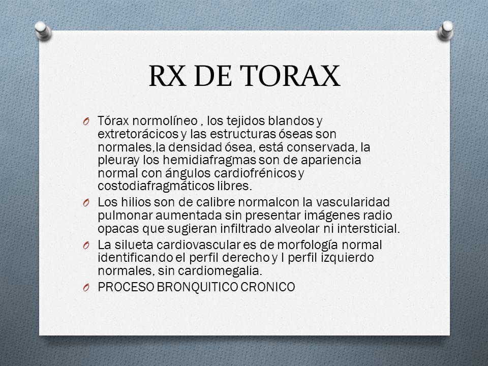 RX DE TORAX