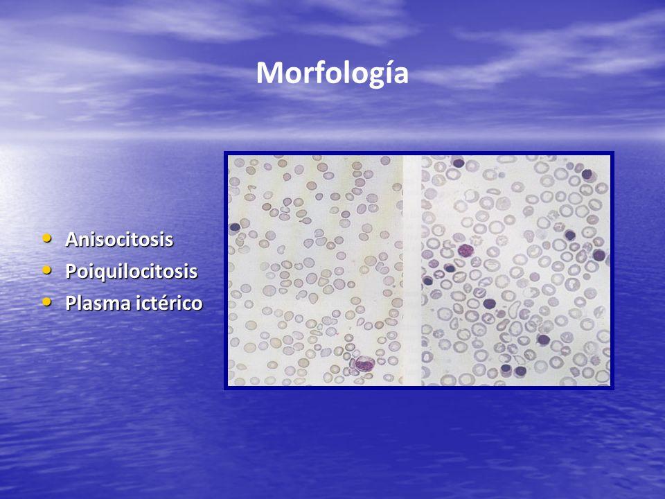 Morfología Anisocitosis Poiquilocitosis Plasma ictérico