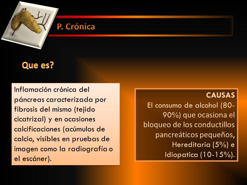 P. Crónica Que es