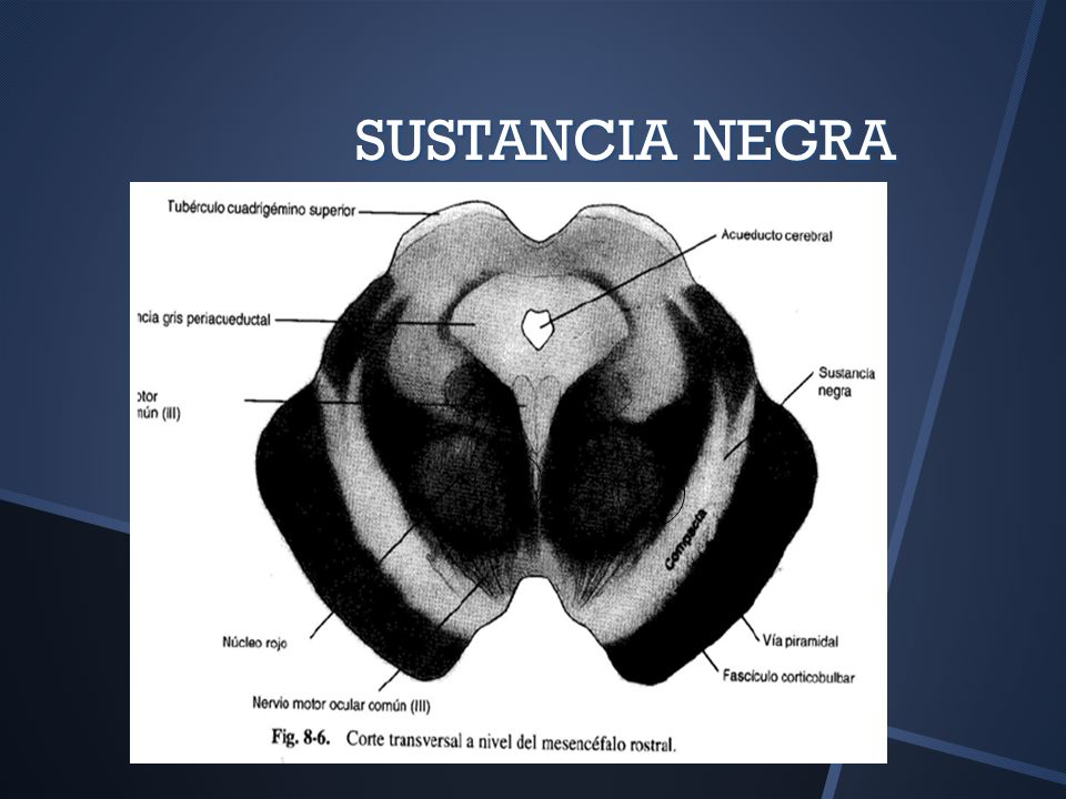 SUSTANCIA NEGRA