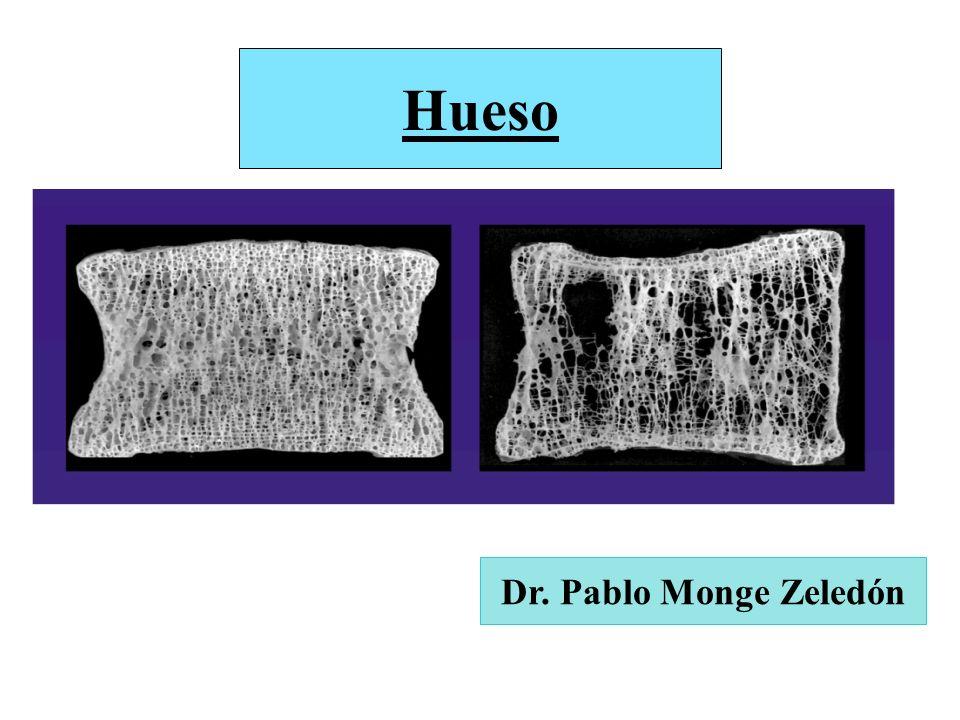 Hueso Dr. Pablo Monge Zeledón