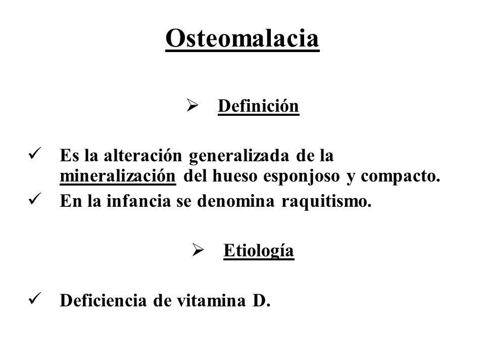 Osteomalacia Definición
