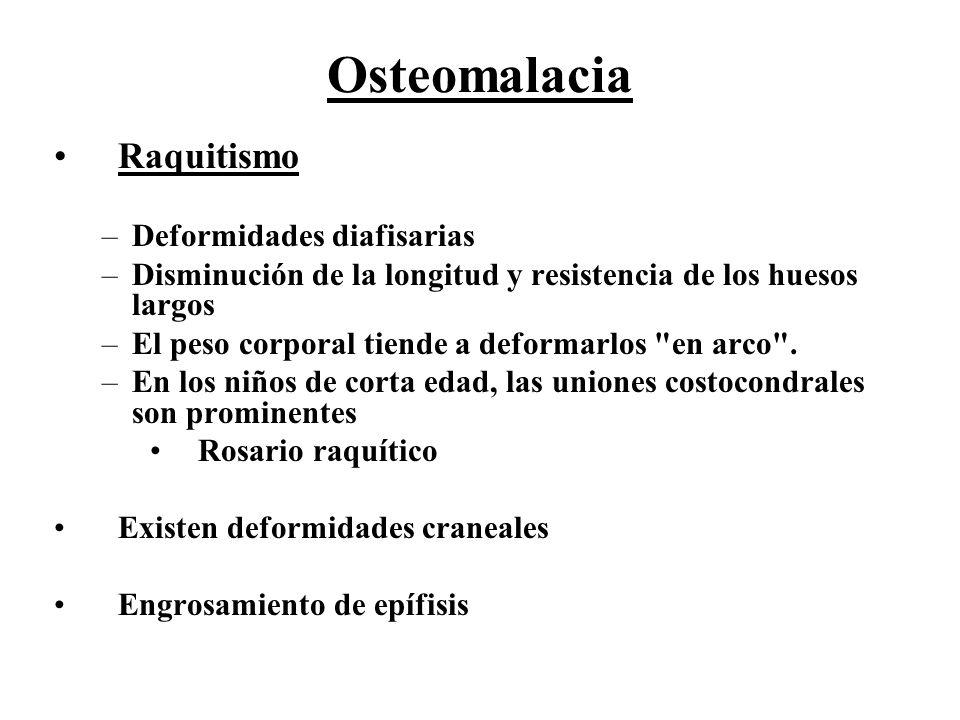 Osteomalacia Raquitismo Deformidades diafisarias