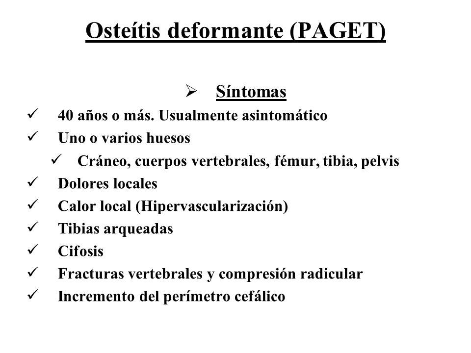 Osteítis deformante (PAGET)