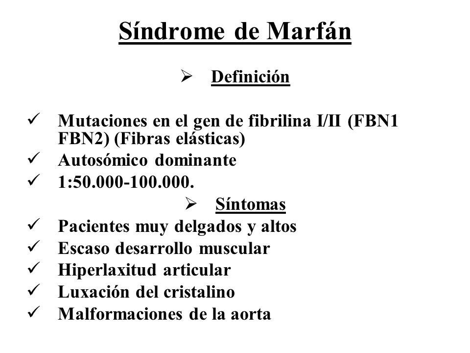 Síndrome de Marfán Definición