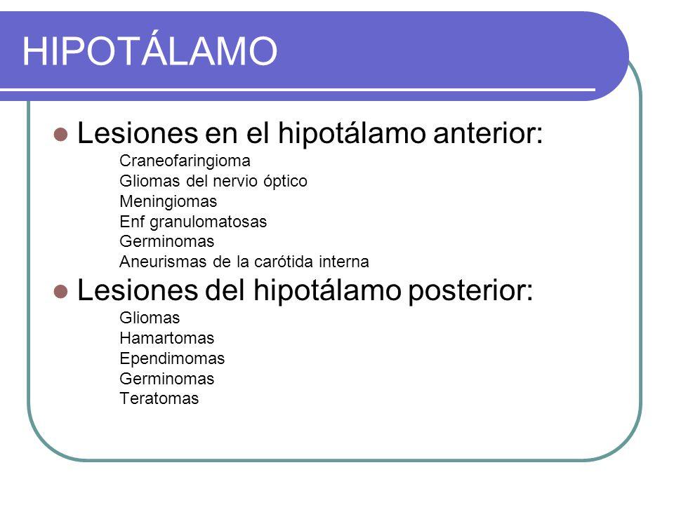 HIPOTÁLAMO Lesiones en el hipotálamo anterior: