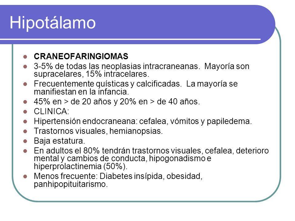 Hipotálamo CRANEOFARINGIOMAS