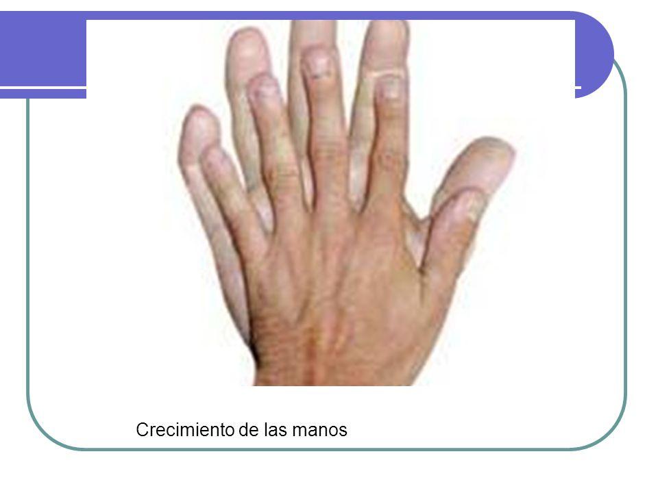 Crecimiento de las manos