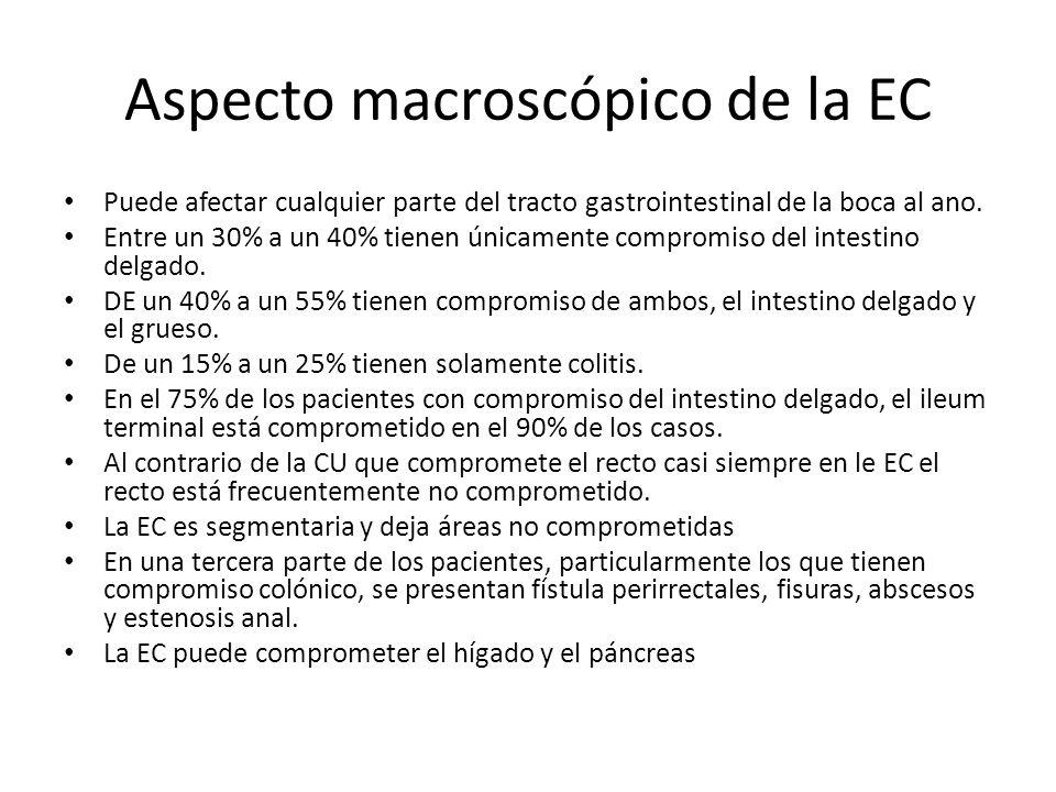 Aspecto macroscópico de la EC