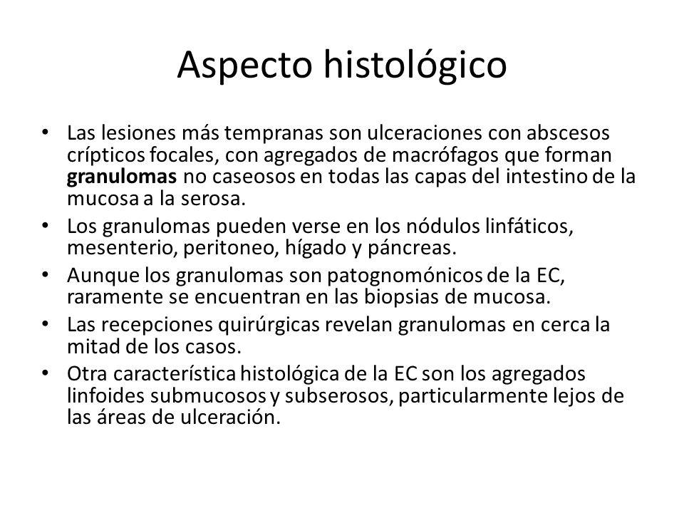 Aspecto histológico